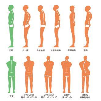 姿勢矯正の習慣