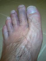 足のけがすごい!